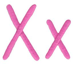 All Things Pink Alphabet X